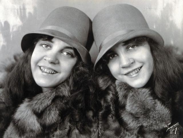 трагическая жизнь сросшихся близнецов